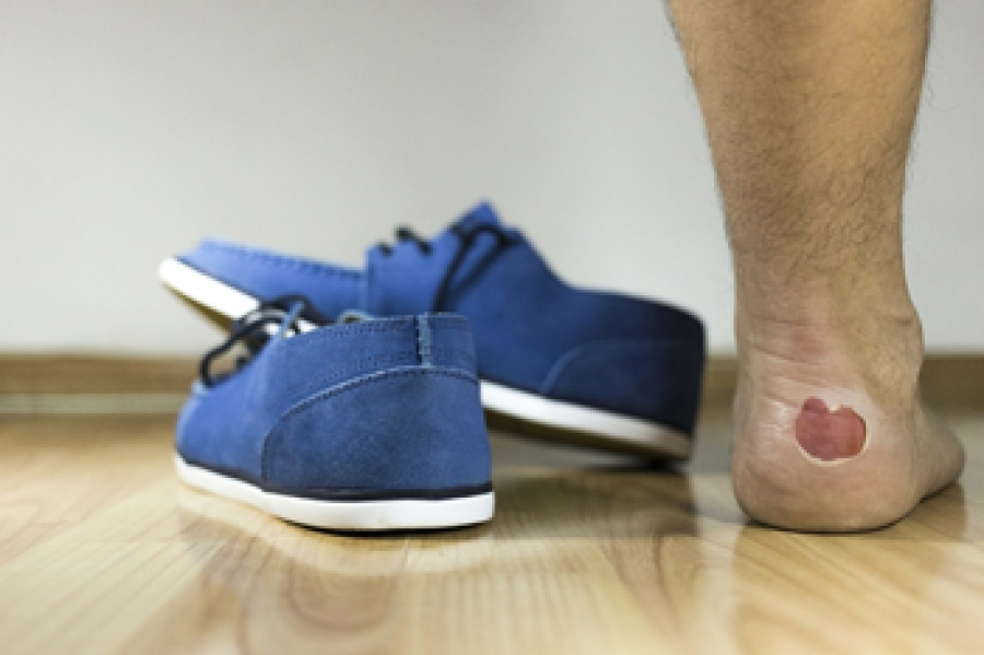 Different Types Of Blisters On The Feet